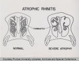 Diagram showing atrophic rhinitis